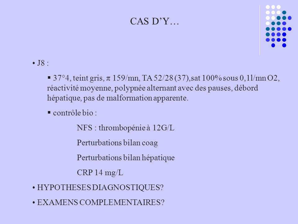 CAS D'Y… J8 :
