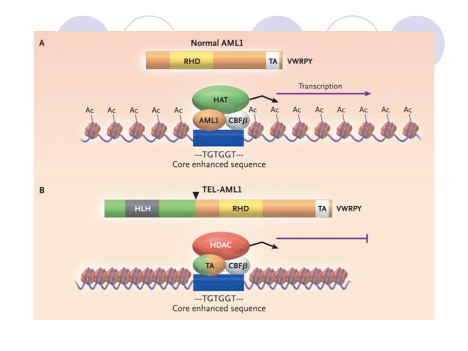 T(12;21)(q13;q22) Tel: facteur de transcription de la famille ETS, essentiel pour le nidation de la CSH ds la Mo; AML facteur transcription de la famille AML1/CBF. Fusion de ces 2 chromosomes responsables d'un transcrit c'est à dire une protéine TEL/AML1 qui va inhiber la transcription qui est normallement initié par AML1.