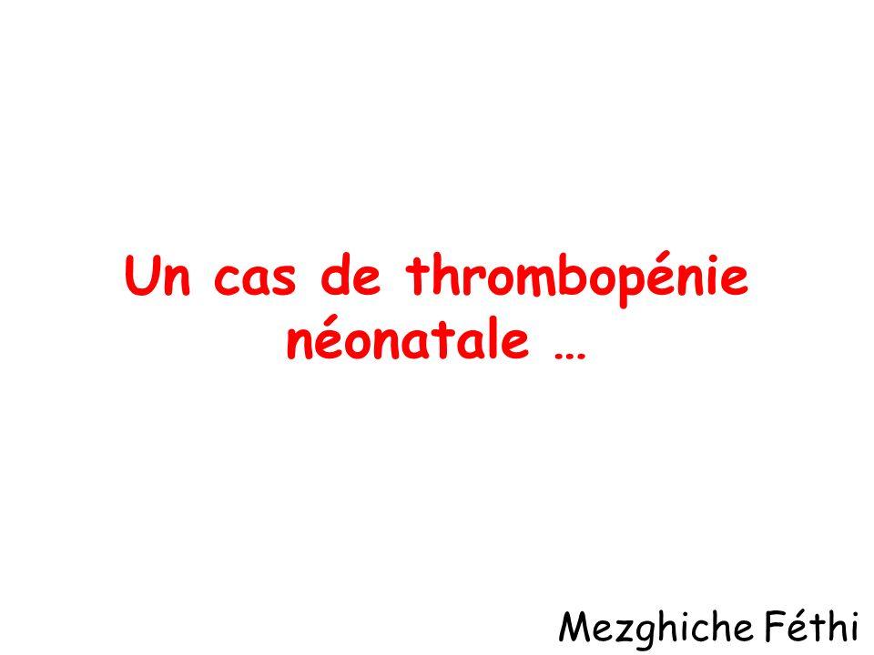 Un cas de thrombopénie néonatale …