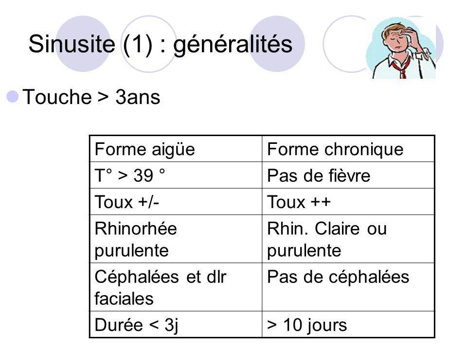 Sinusite (1) : généralités