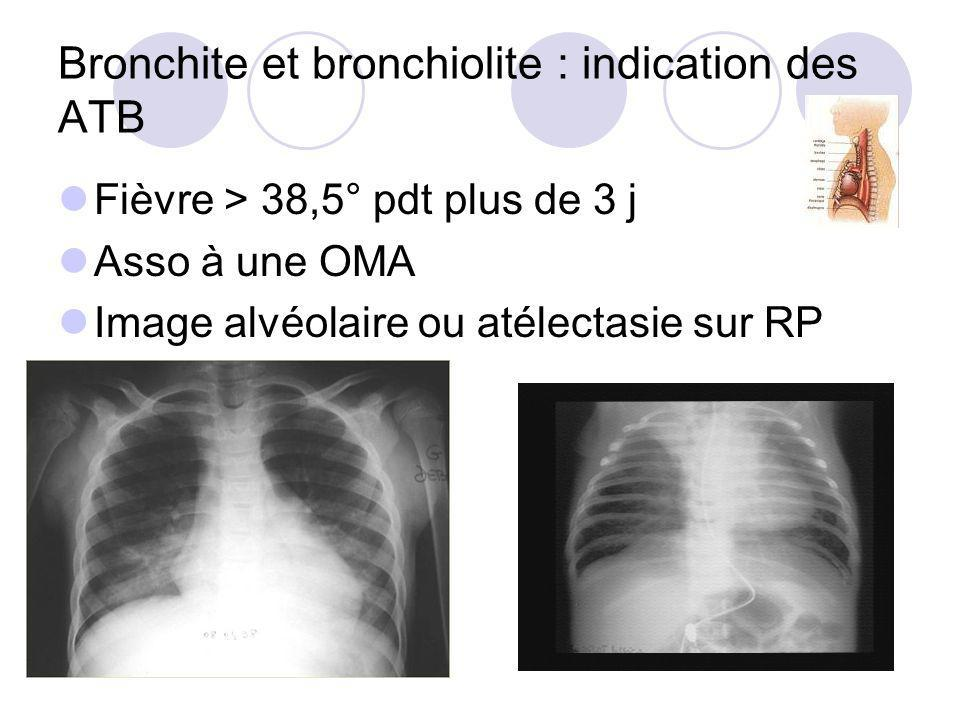 Bronchite et bronchiolite : indication des ATB