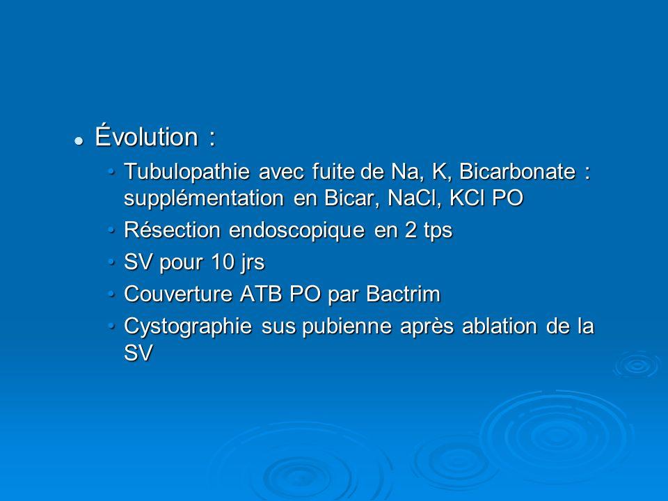 Évolution : Tubulopathie avec fuite de Na, K, Bicarbonate : supplémentation en Bicar, NaCl, KCl PO.