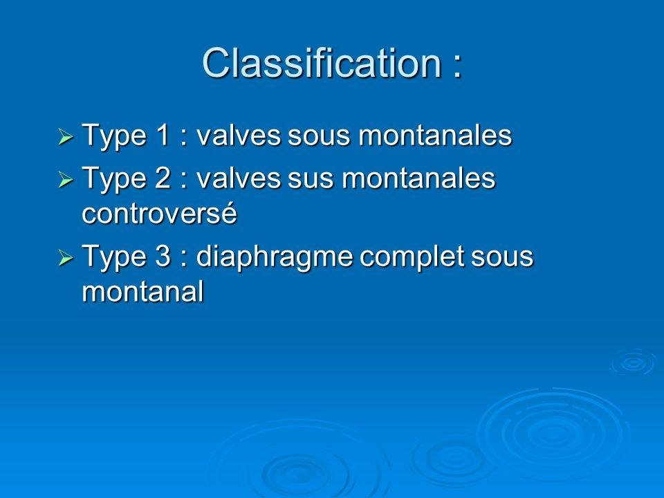 Classification : Type 1 : valves sous montanales