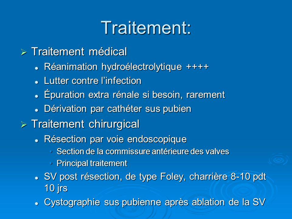 Traitement: Traitement médical Traitement chirurgical
