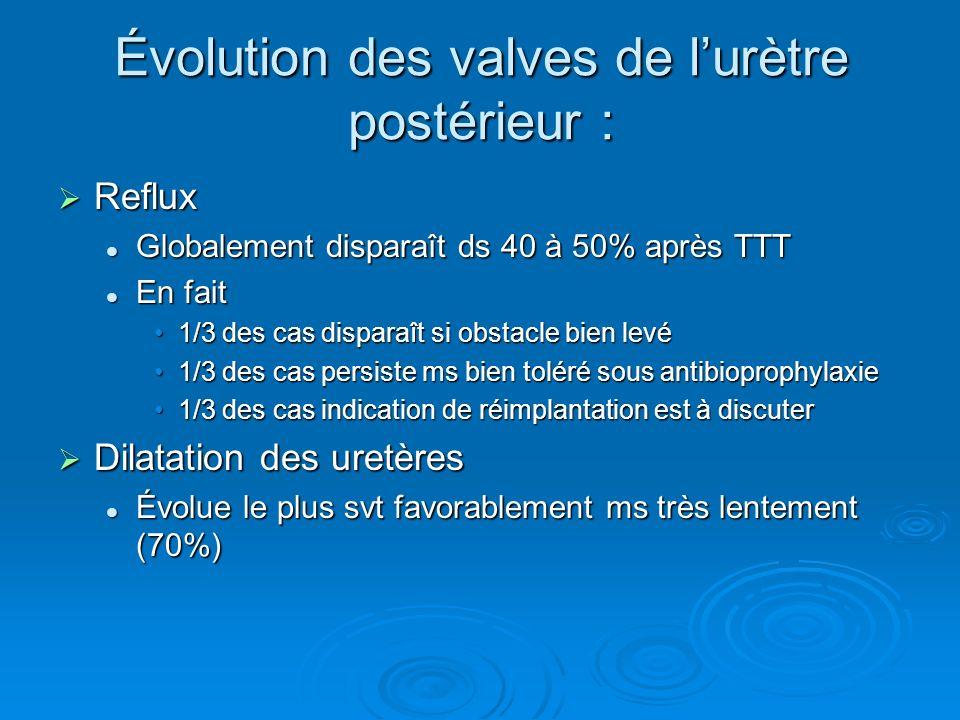 Évolution des valves de l'urètre postérieur :