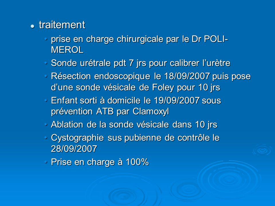 traitement prise en charge chirurgicale par le Dr POLI-MEROL