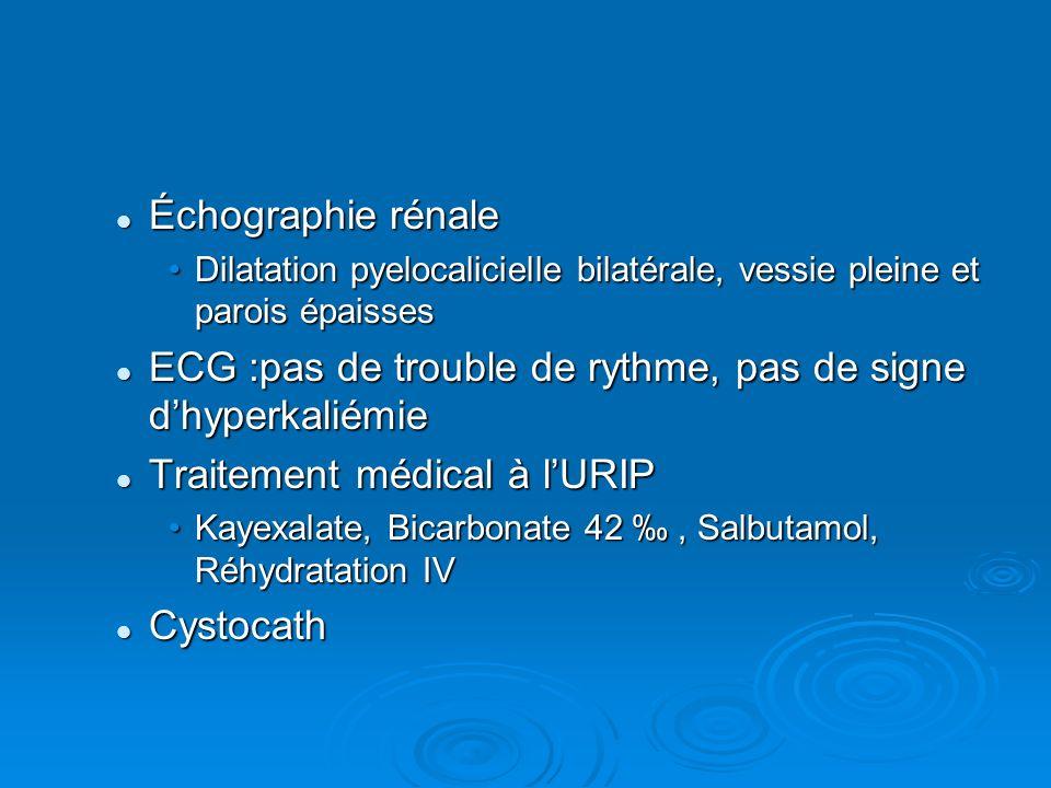 ECG :pas de trouble de rythme, pas de signe d'hyperkaliémie
