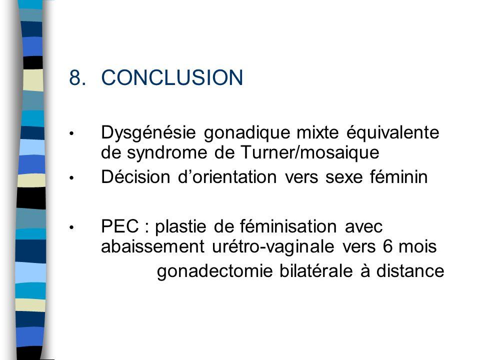 CONCLUSION Dysgénésie gonadique mixte équivalente de syndrome de Turner/mosaique. Décision d'orientation vers sexe féminin.