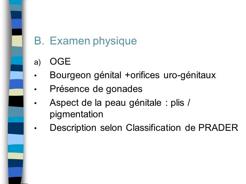 Examen physique OGE Bourgeon génital +orifices uro-génitaux