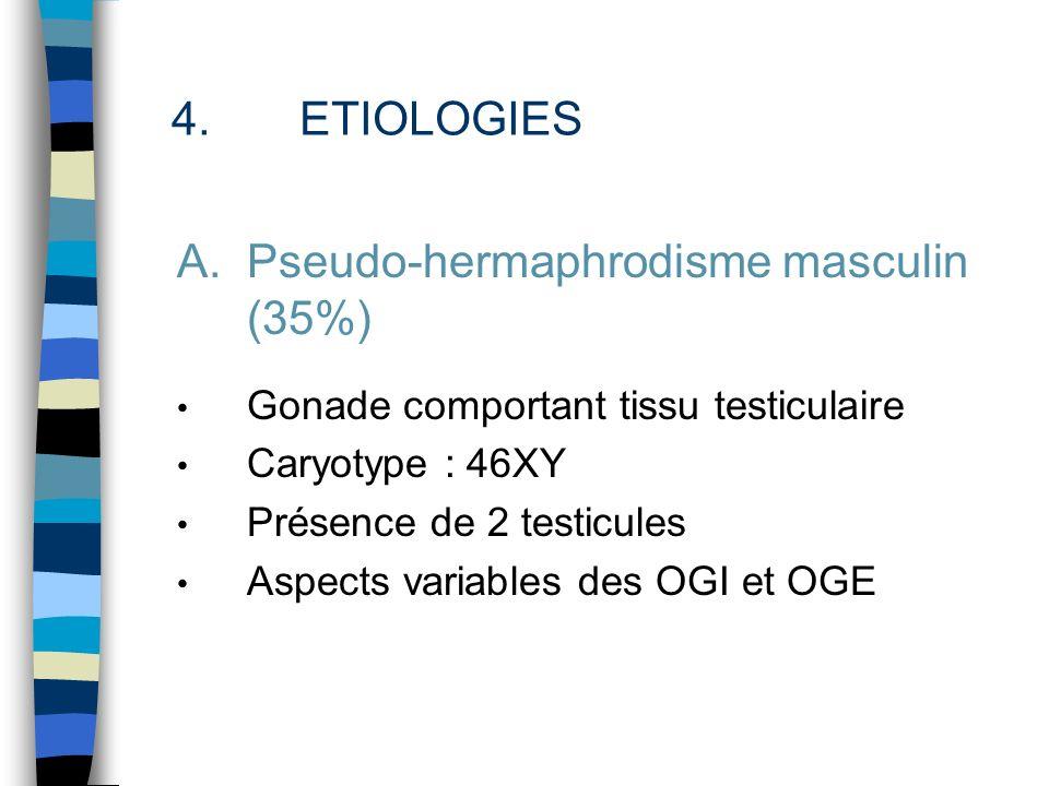 Pseudo-hermaphrodisme masculin (35%)
