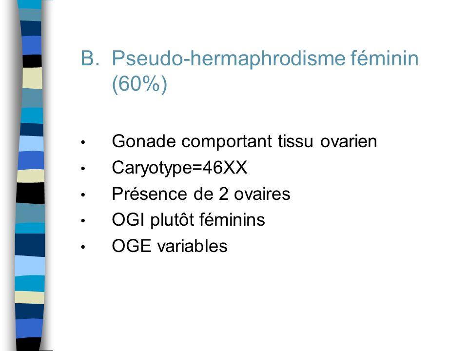 Pseudo-hermaphrodisme féminin (60%)