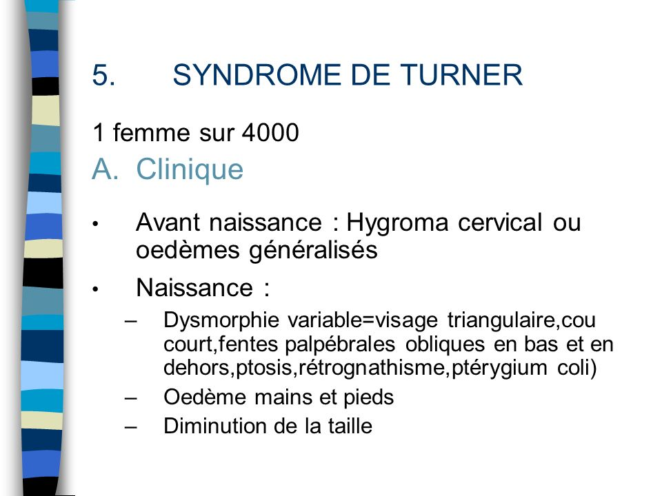 SYNDROME DE TURNER Clinique 1 femme sur 4000