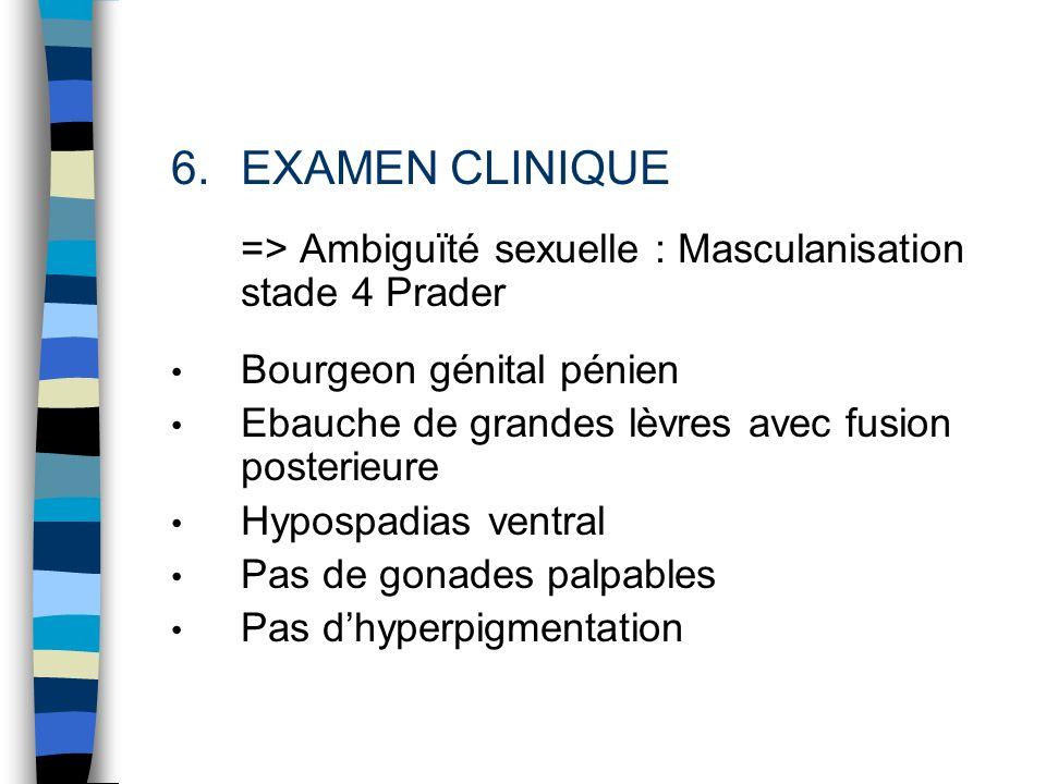 EXAMEN CLINIQUE => Ambiguïté sexuelle : Masculanisation stade 4 Prader. Bourgeon génital pénien. Ebauche de grandes lèvres avec fusion posterieure.