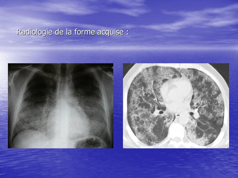 Radiologie de la forme acquise :