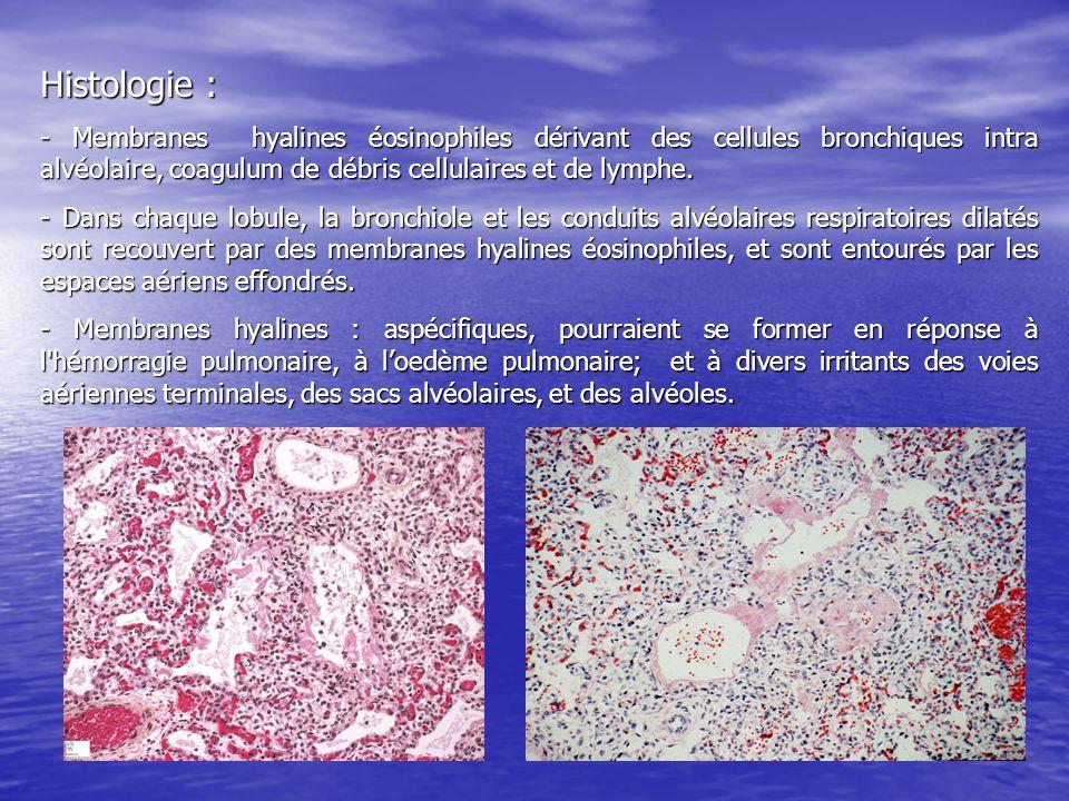 Histologie : - Membranes hyalines éosinophiles dérivant des cellules bronchiques intra alvéolaire, coagulum de débris cellulaires et de lymphe.