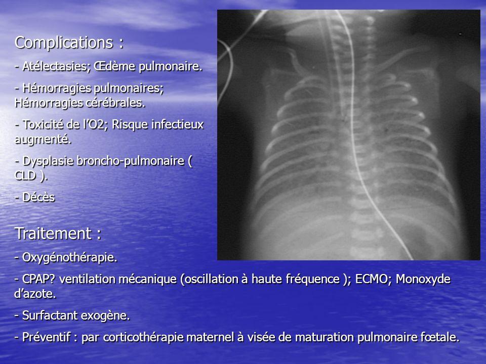 Complications : Traitement : - Atélectasies; Œdème pulmonaire.
