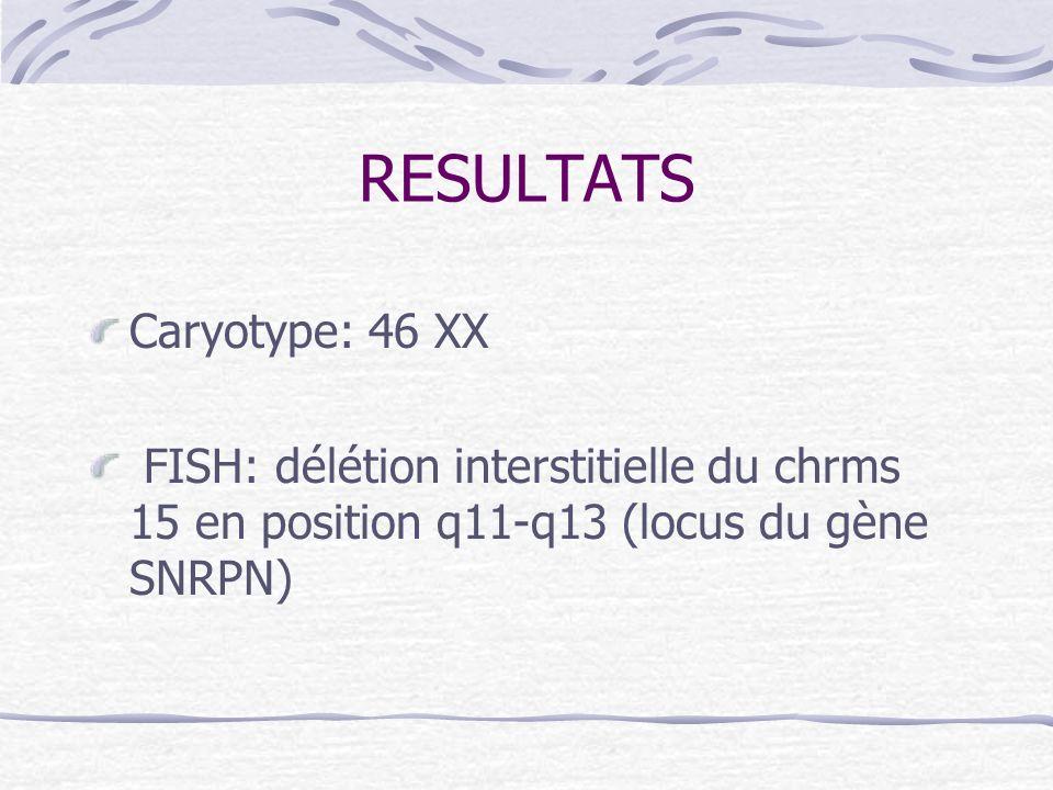 RESULTATS Caryotype: 46 XX