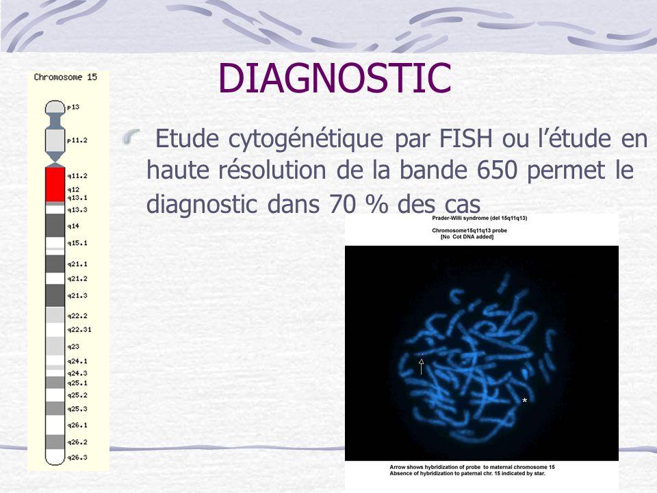 DIAGNOSTIC Etude cytogénétique par FISH ou l'étude en haute résolution de la bande 650 permet le diagnostic dans 70 % des cas.