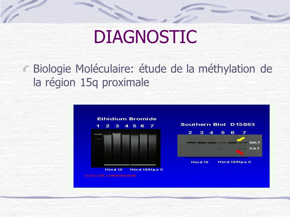 DIAGNOSTIC Biologie Moléculaire: étude de la méthylation de la région 15q proximale