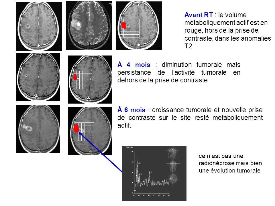 Avant RT : le volume métaboliquement actif est en rouge, hors de la prise de contraste, dans les anomalies T2