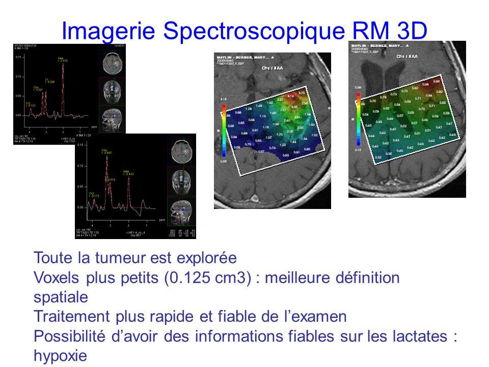 Imagerie Spectroscopique RM 3D