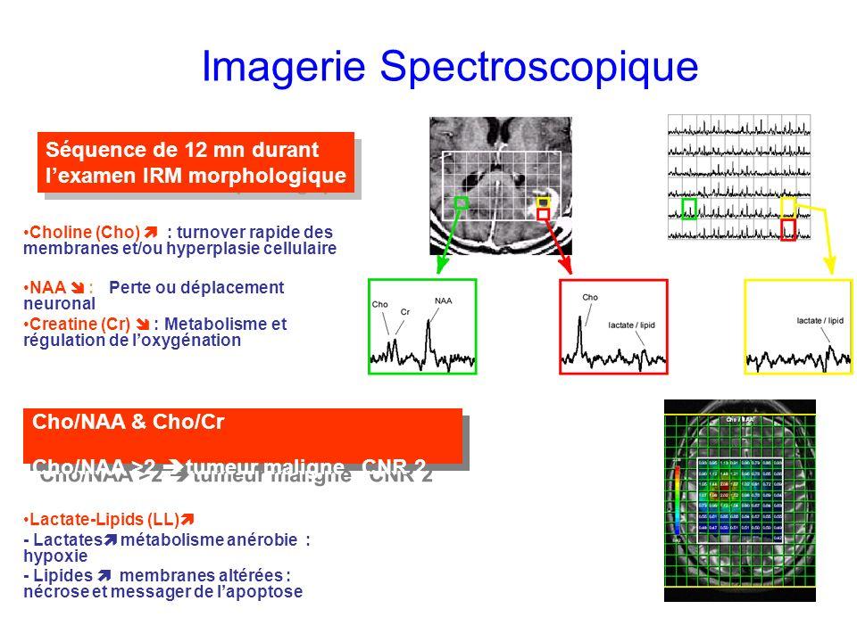 Imagerie Spectroscopique