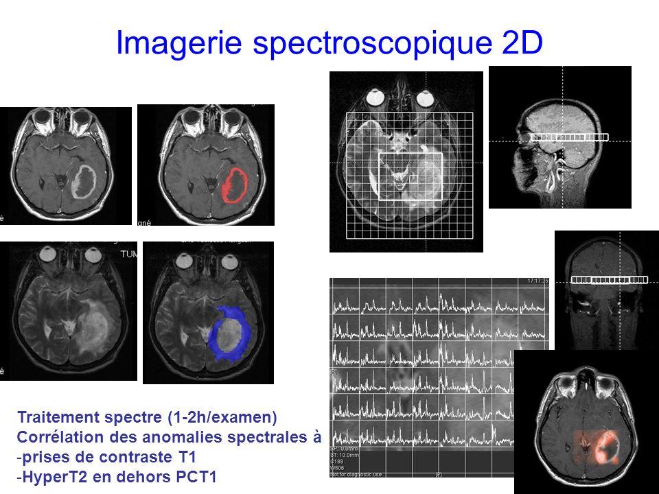 Imagerie spectroscopique 2D