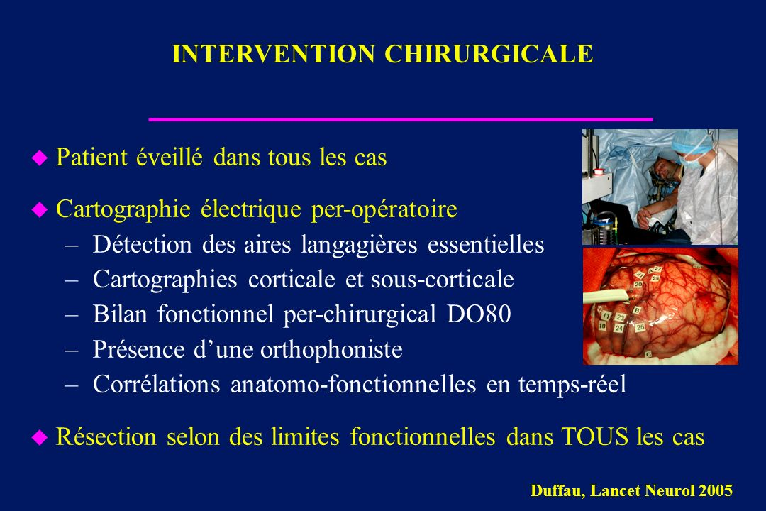 INTERVENTION CHIRURGICALE