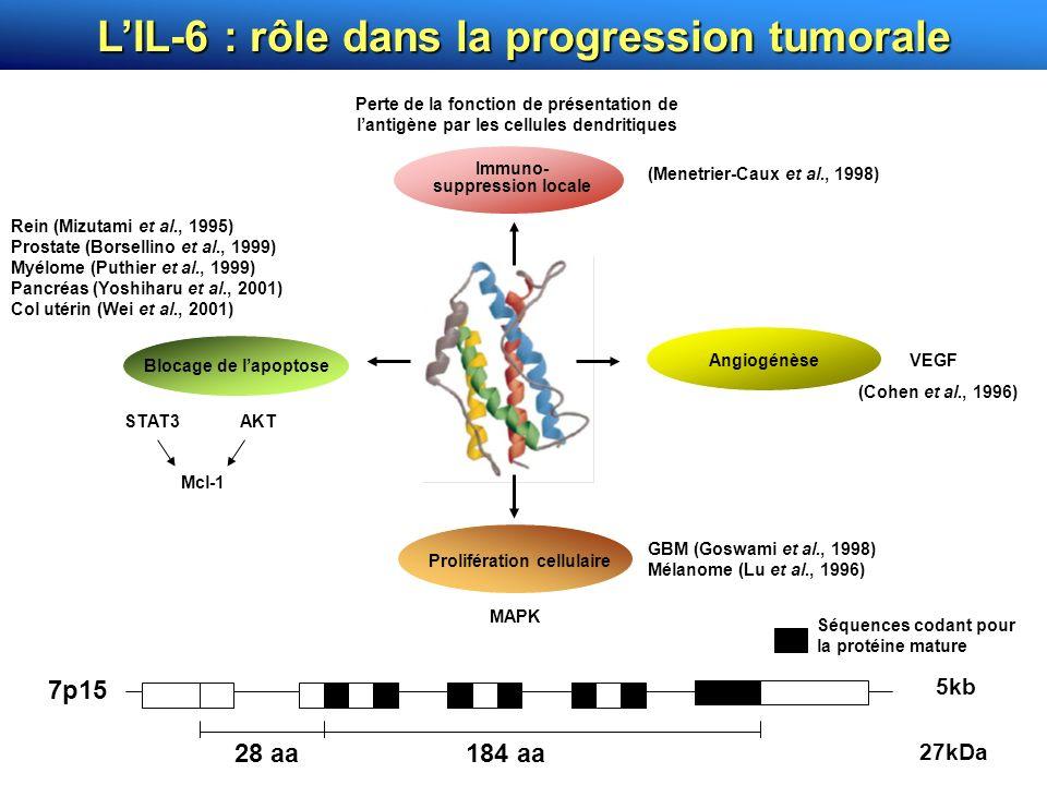 L'IL-6 : rôle dans la progression tumorale