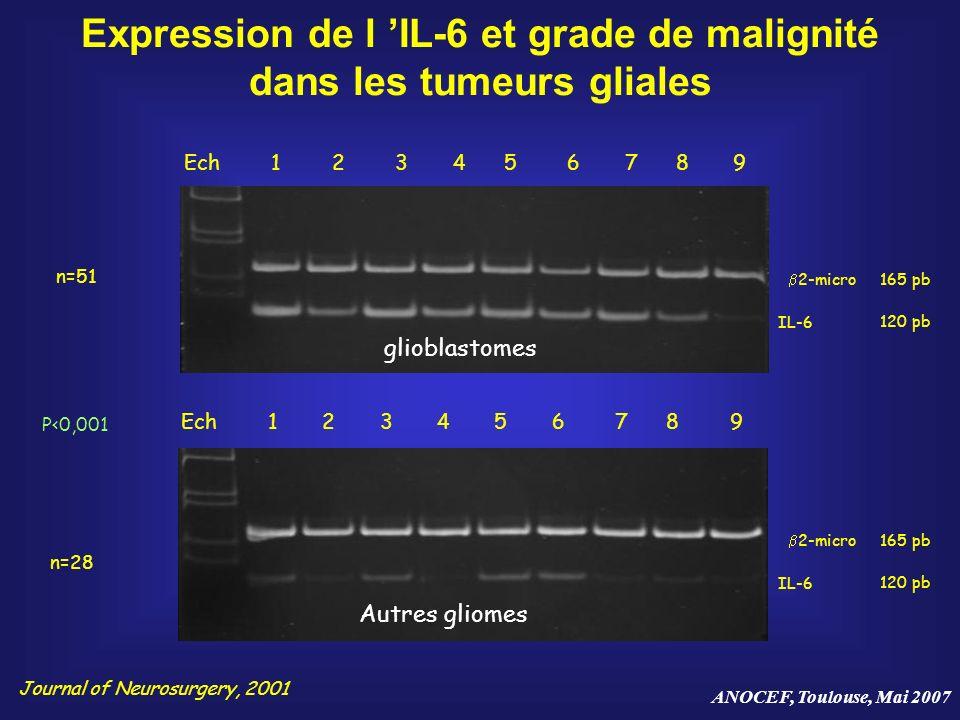 Expression de l 'IL-6 et grade de malignité dans les tumeurs gliales