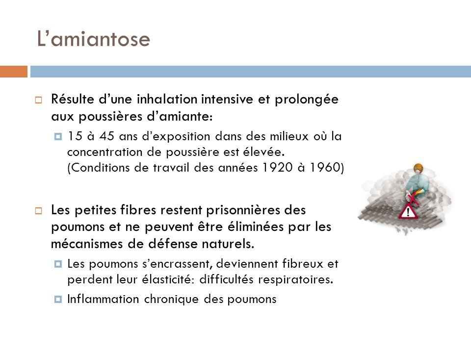 L'amiantoseRésulte d'une inhalation intensive et prolongée aux poussières d'amiante: