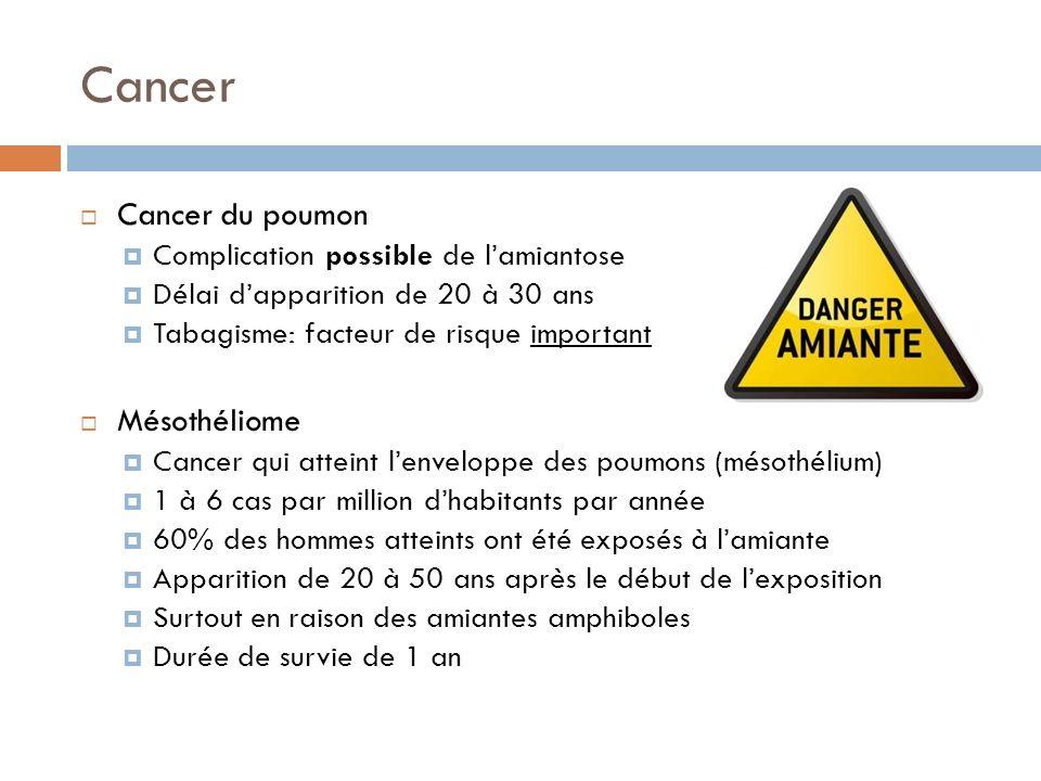 Cancer Cancer du poumon Mésothéliome