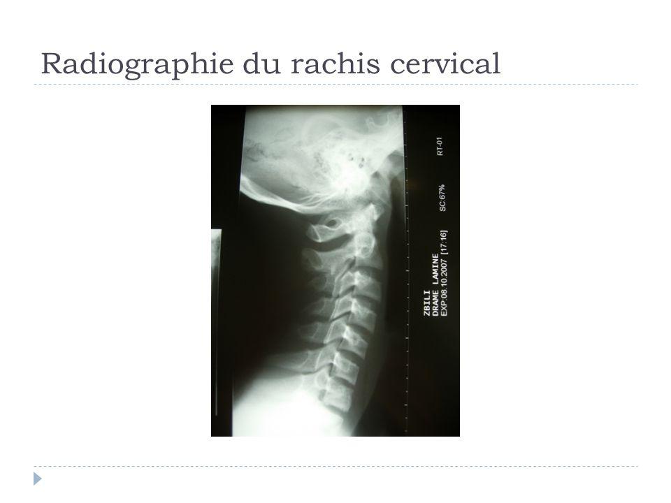 Radiographie du rachis cervical
