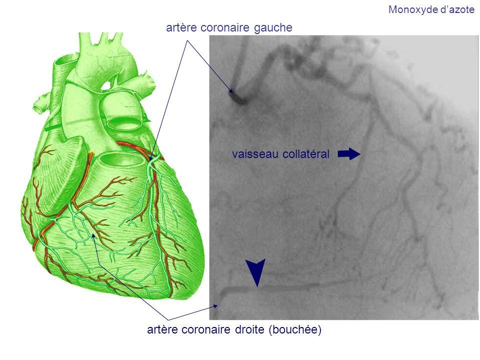 artère coronaire gauche