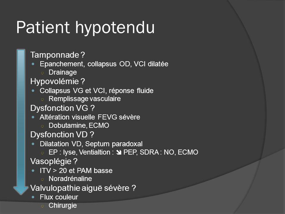Patient hypotendu Tamponnade Hypovolémie Dysfonction VG