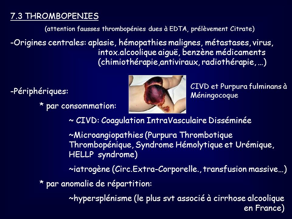 (attention fausses thrombopénies dues à EDTA, prélèvement Citrate)