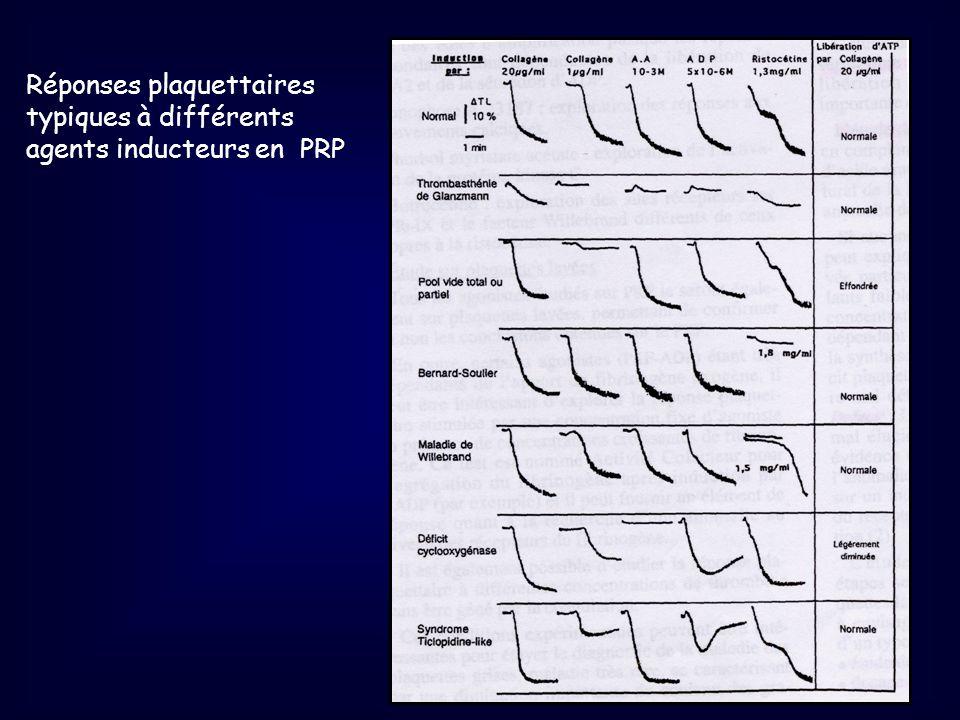 Réponses plaquettaires typiques à différents agents inducteurs en PRP