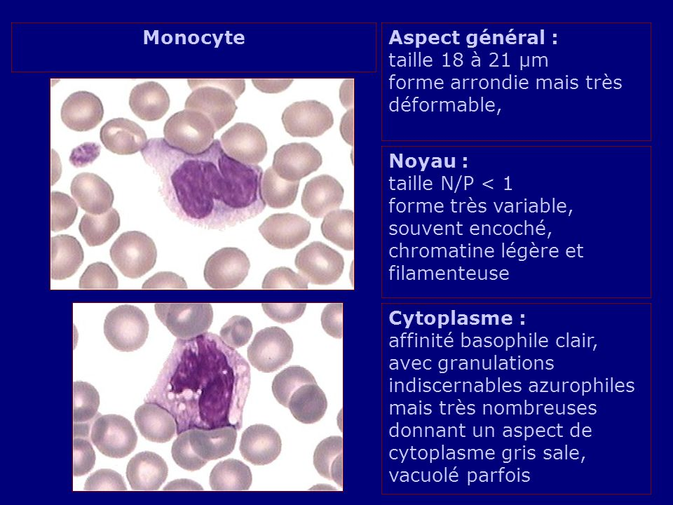 Monocyte Aspect général : taille 18 à 21 µm forme arrondie mais très déformable,