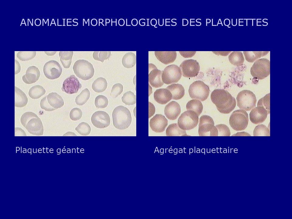 ANOMALIES MORPHOLOGIQUES DES PLAQUETTES