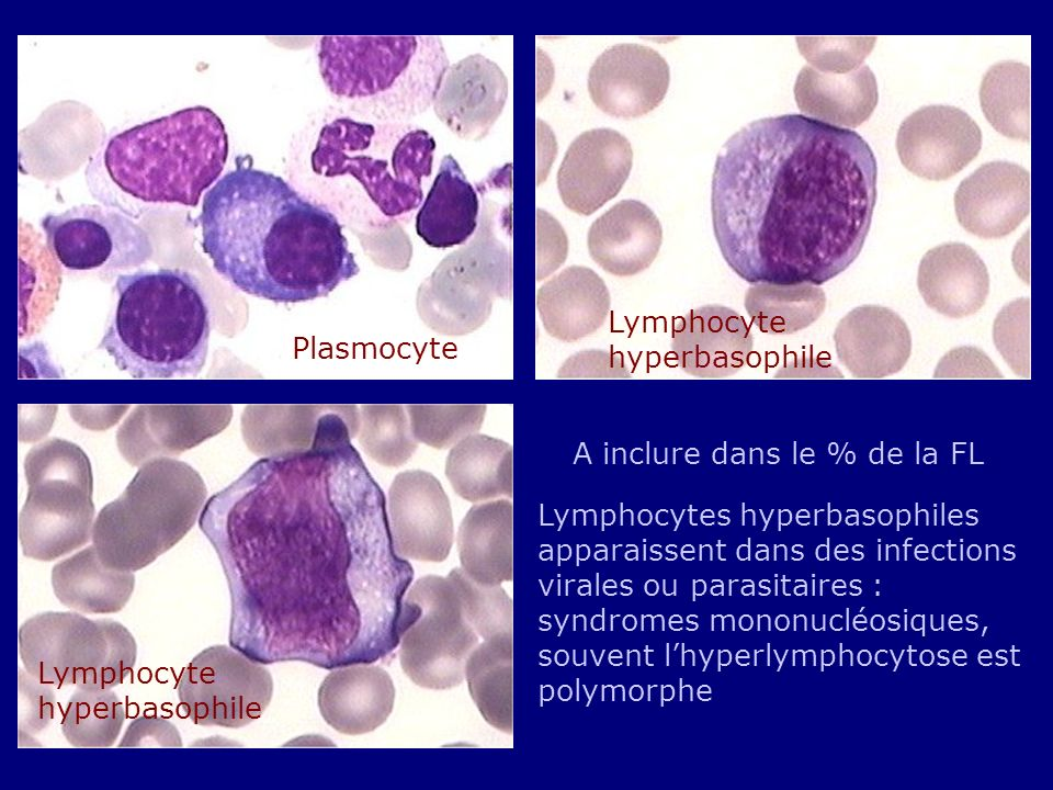 Lymphocyte hyperbasophile