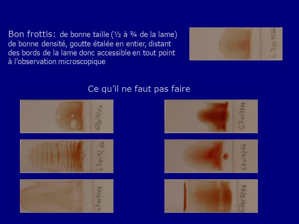 Bon frottis: de bonne taille (½ à ¾ de la lame) de bonne densité, goutte étalée en entier, distant des bords de la lame donc accessible en tout point à l'observation microscopique