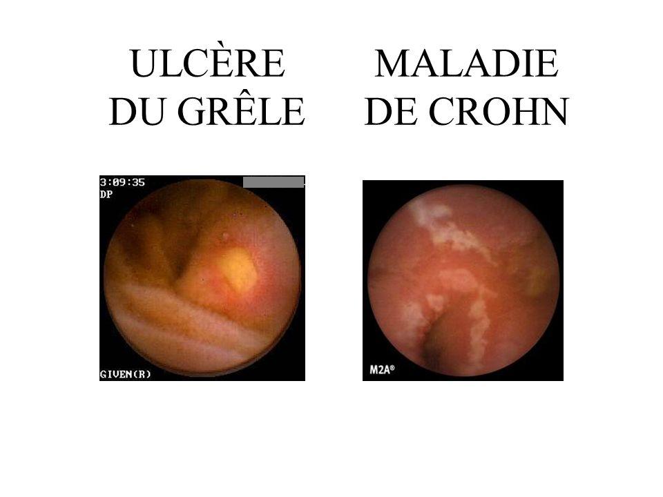 ULCÈRE DU GRÊLE MALADIE DE CROHN