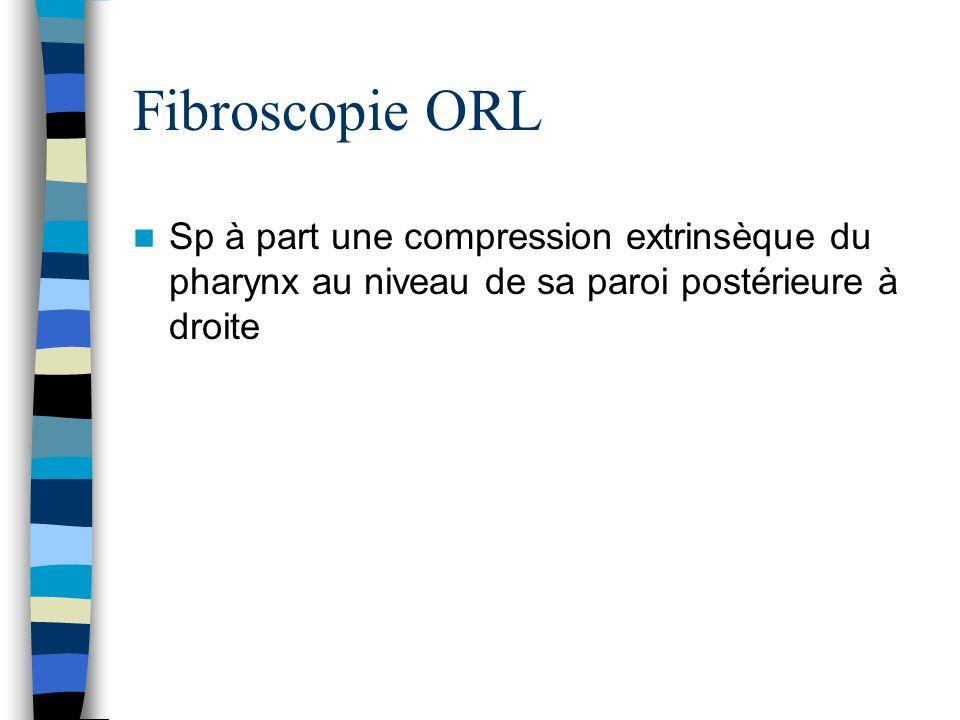 Fibroscopie ORL Sp à part une compression extrinsèque du pharynx au niveau de sa paroi postérieure à droite.