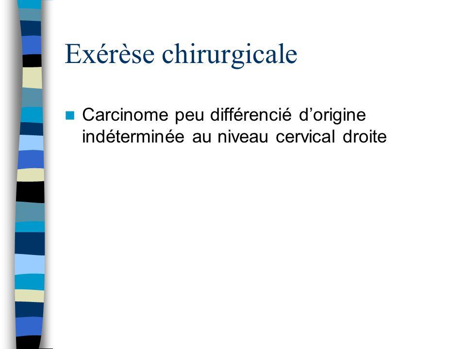 Exérèse chirurgicale Carcinome peu différencié d'origine indéterminée au niveau cervical droite