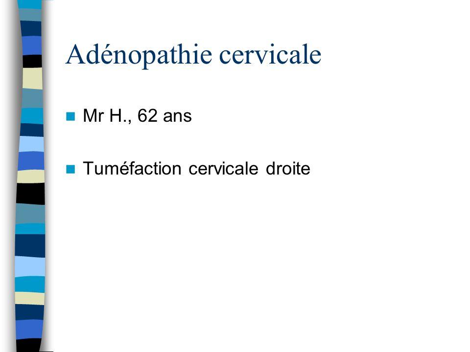 Adénopathie cervicale