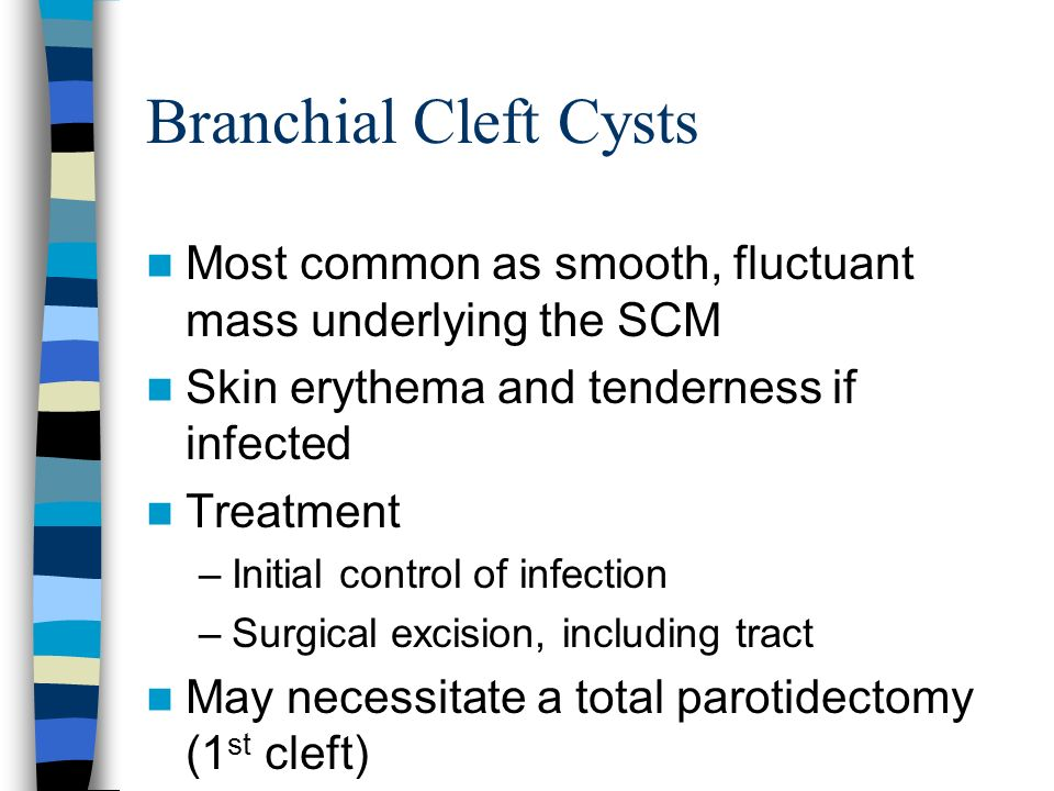 Branchial Cleft Cysts Most common as smooth, fluctuant mass underlying the SCM. Skin erythema and tenderness if infected.