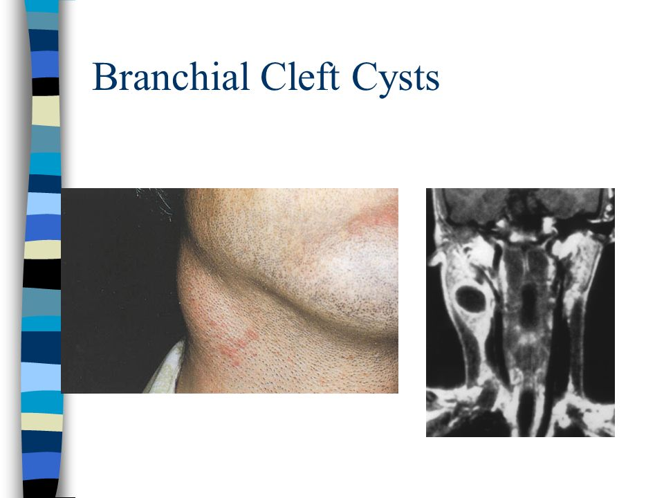 Branchial Cleft Cysts