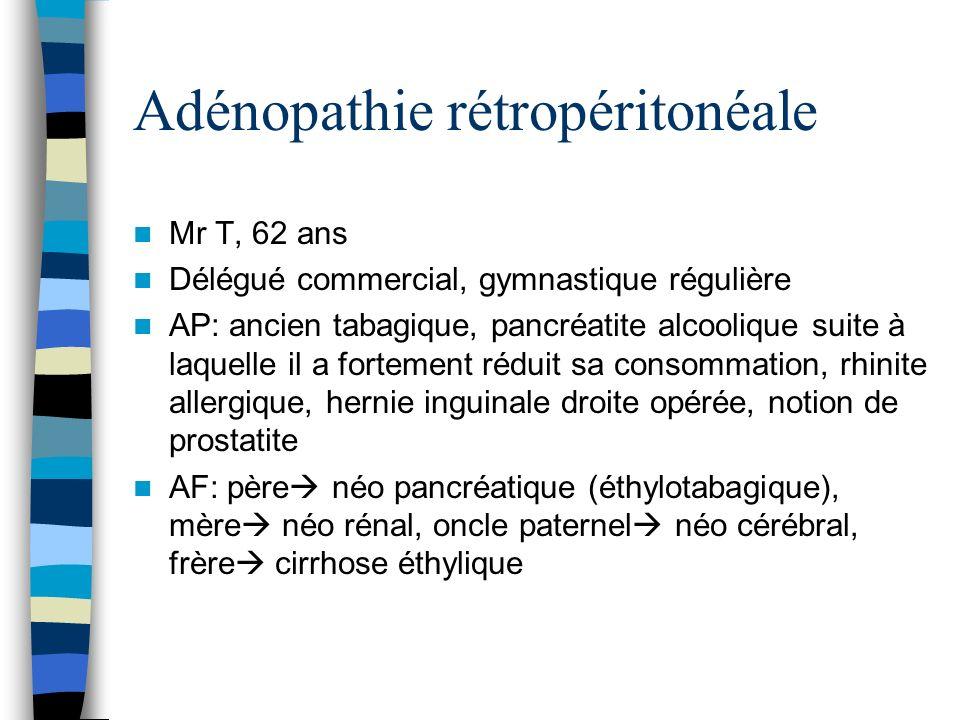 Adénopathie rétropéritonéale