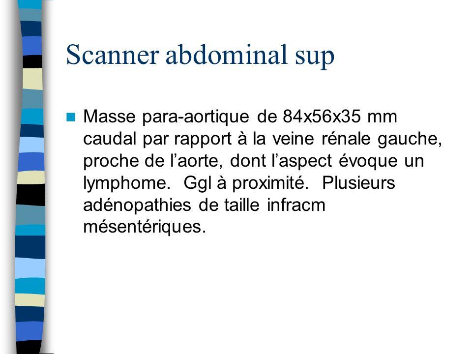 Scanner abdominal sup