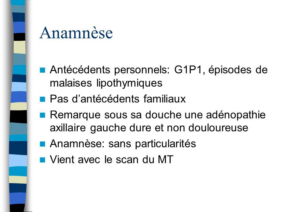 Anamnèse Antécédents personnels: G1P1, épisodes de malaises lipothymiques. Pas d'antécédents familiaux.